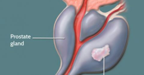 Male infertility linked to prostate cancer risk